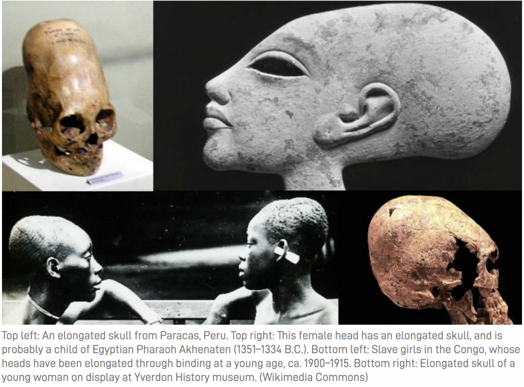 Elongated skulls from www.theepochtimes.com